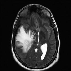 Hirntumor MRT T1-gewichtet mit Kontrastmittel, transversal