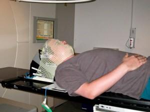 Auf dem Tisch des Elekta SL15 bei der Bestrahlung mit Maske