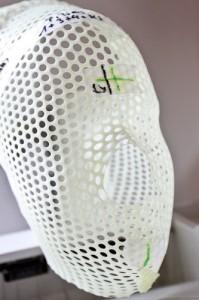 Maske zur stereotaktischen Bestrahlung