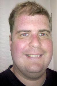 Nach der Bestrahlung mit Maskenabdruck
