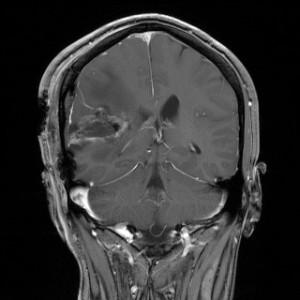 Hirntumor nach der Operation, MRT T1-gewichtet mit Kontrastmittel, frontal aus dem KGU