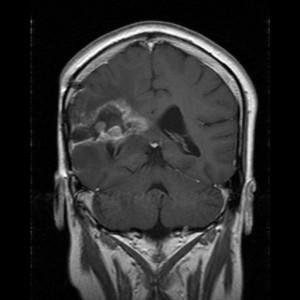 Glioblastom in der MRT,T1-gewichtet mit Kontrastmittel, frontaler Schnitt aus dem KGU