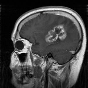 Glioblastom in der MRT,T1-gewichtet mit Kontrastmittel, sagitaler Schnitt aus dem KGU