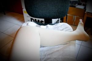 Bein mit Thrombosestrumpf